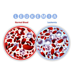 Leukemia infographic image vector