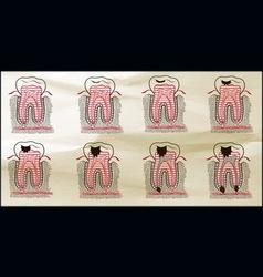teeth karies Sepia vector image