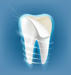 Dental porcelain veneers vector