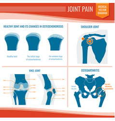 osteoarthritis and rheumatism joint pain medical vector image