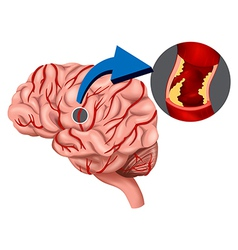 Blood Clot concept in the brain vector