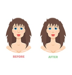 Plastic surgery rhinoplasty before and after vector image