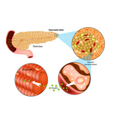 Insulin production in the pancrea vector