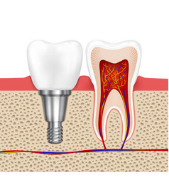 Healthy teeth and dental implant vector image vector image
