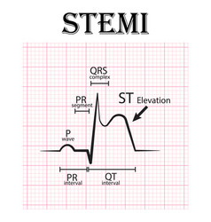 Ecg of st elevation myocardial infarction stemi vector