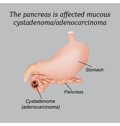 Pancreas mucous cystadenoma adenocarcinoma vector image