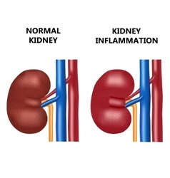 Healthy kidney and kidney infection vector image