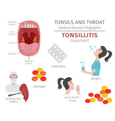 Tonsils and throat diseases tonsillitis symptoms vector