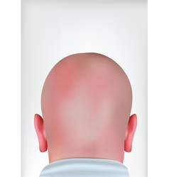 Realistic bald head vector