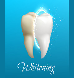 Teeth whitening concept with clean and dirty tooth vector