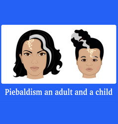 piebaldism in an adult and a child vector image