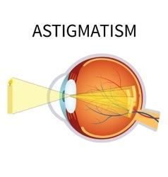 astigmatism vector image