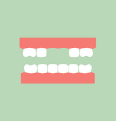 missing tooth - denture model vector image