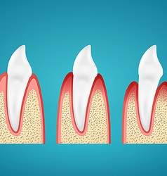 Stages progress disease gum on human canine vector image