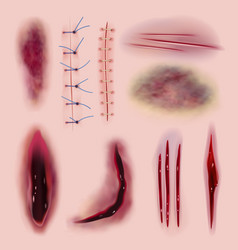 Stitching realistic coloring bloody scars cuts vector