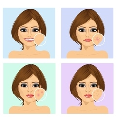 Young girl with facial skin problem vector