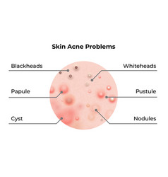 Skin acne types diagram skin problems disease vector