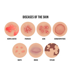 skin disease types of dermatology problems with vector image