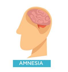 Amnesia symptom alzheimer disease brain damage vector