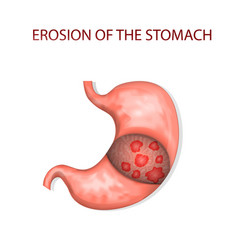 Erosion of the stomach vector