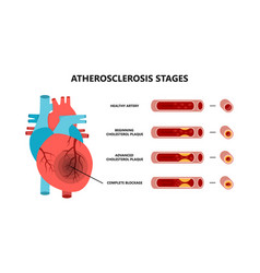 Heart attack and atherosclerosis stages healthy vector