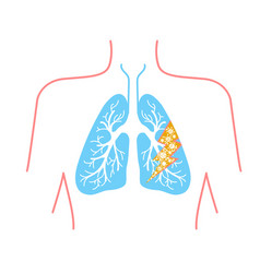 icon of lung disease vector image vector image