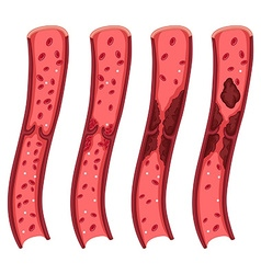 Blood clot diagram on white vector image