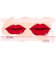 lip augmentation before and after the cosmetology vector image