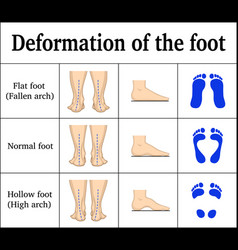 Deformation of the foot vector