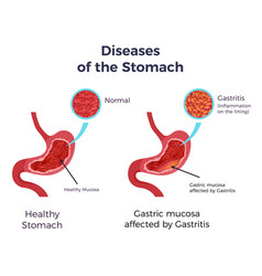 gastritis stomach set vector image