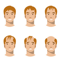 Stages of hair loss and hair treatment vector