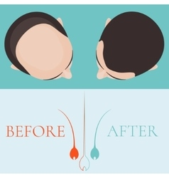 Bald man before and after hair treatment vector