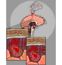 Brain barrier vector