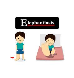 Elephantiasis in flat cartoon vector