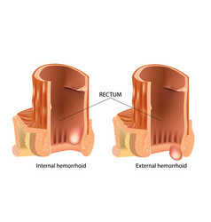 types of hemorrhoids hemorrhoids or piles vector image