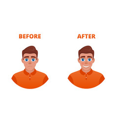 acne treatment concept vector image
