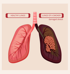 smoker lungs smoke human damage lung cancer vector image