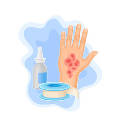 Hand with burn on skin and medicine for cure vector