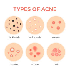 Acne types skin infection problem pimples grade vector