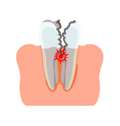Tooth damaged inflammation vector