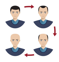 four stages of hair loss for men vector image vector image