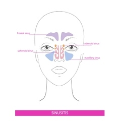 Nasal sinus inflammation vector