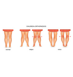 pediatric orthopedics valgus and varus vector image