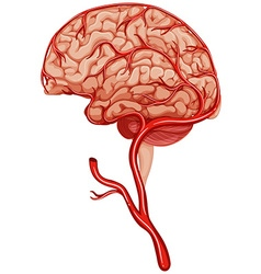 Blood clot in human brain vector