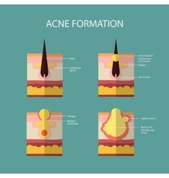 Formation skin acne or pimple the sebum in the vector