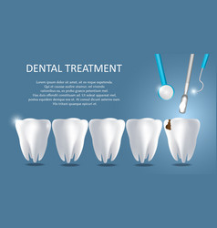 Dental treatment medical poster banner vector