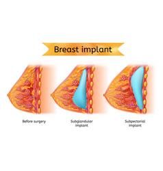 Brest implant procedure anatomical cart vector