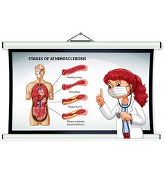 Doctor explaining stages of atherosclerosis vector