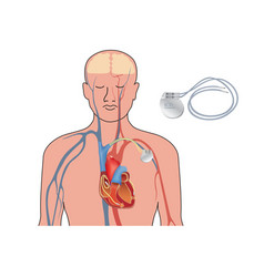Heart pacemaker in work human heart artificial vector