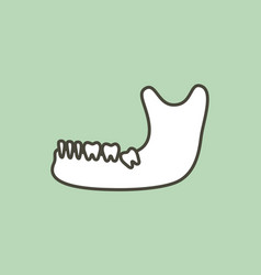 Wisdom tooth angular or mesial impaction vector